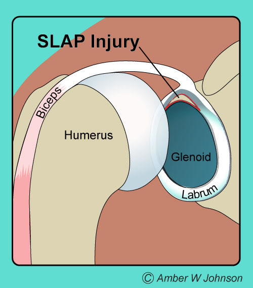 How do you know if you have a slap tear per webmd symptoms include